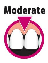 Sunstar Butler Interproximal size moderate